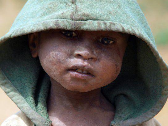 Kind in Madagaskar